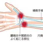 音ゲーによる腱鞘炎(の可能性)